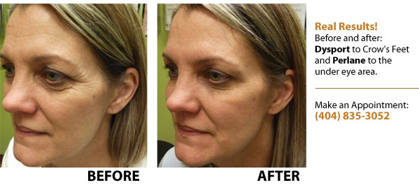Real results using Dysport to Crow's Feet and Perlane under the eye