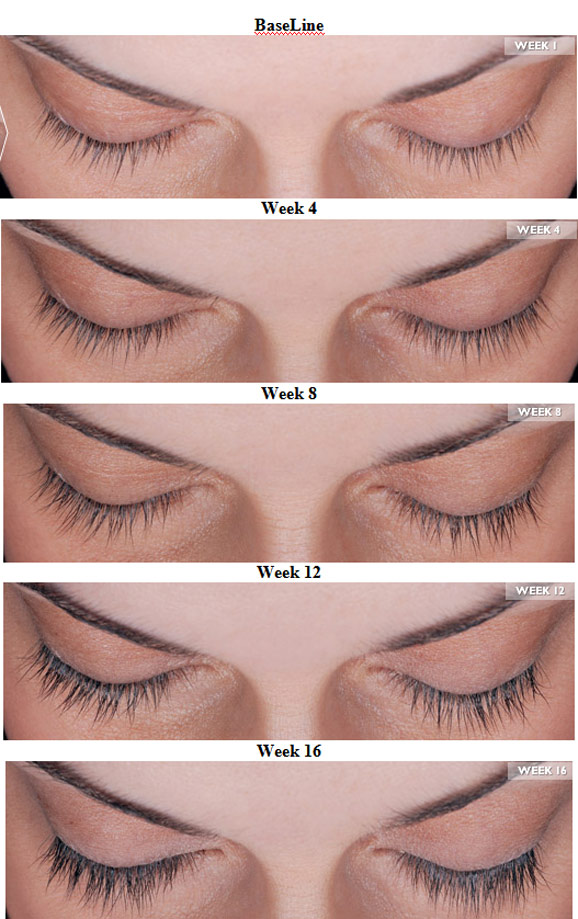 Introducing Latisse Eyelash Enhancer Babcock Dermatology