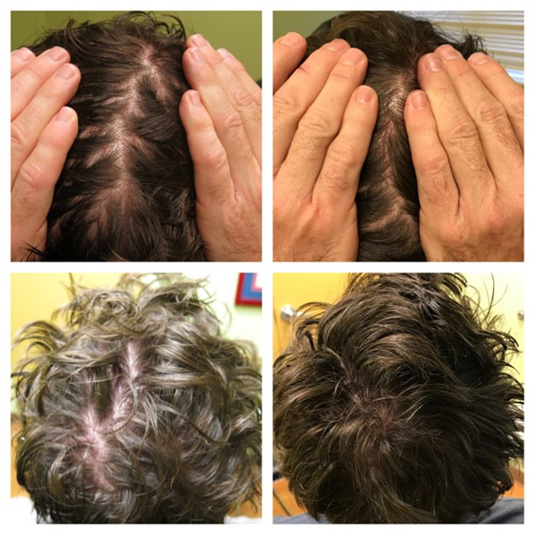 Platelet-Rich Plasma (PRP) Before and After Photos