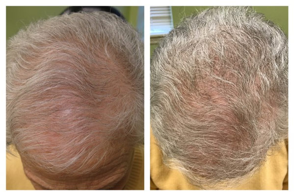 PRP (Platelet Rich Plasma) Treatments for Hair Growth