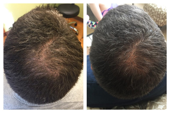 40 year old male after only 2 treatments!