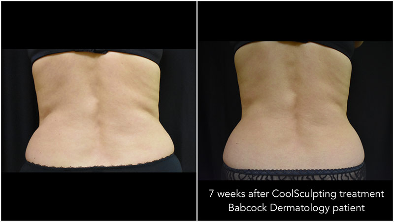 CoolSculpting results on female flanks